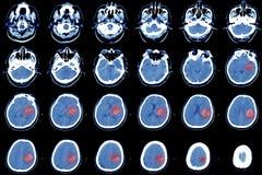 Computed tomography of the brain, hemorrhagic stroke. royalty free stock photo