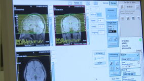 Computed tomography stock footage