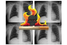 Smoking is harmful and causes cancers and early mortality. A computer generated illustration image of a cigarette aflame with a dark death skull and x-ray scans stock illustration