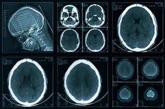 Computer head tomography Stock Photo