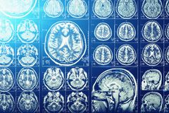 Computer head tomography, X-Ray brain or scull scan image, blue light effect, neurology. Concept royalty free stock photography