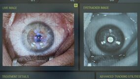 Computer image of an eye during laser correction
