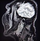 Temporamandibular joint pathology ct diagnostic Stock Image