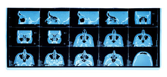 Computer tomography of maxillary sinus stock image