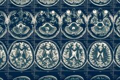 Computer tomography X-Ray brain scan image, internal hydrocephalus, neurology. Concept royalty free stock image
