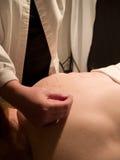 Conceito da acupunctura Imagem de Stock