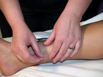 Conceito da acupunctura Fotografia de Stock Royalty Free