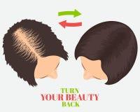 Conceito da beleza da queda de cabelo ilustração do vetor