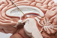 Conceito da gravação do cérebro no núcleo subthalamic para a cirurgia da doença de Parkinson imagens de stock