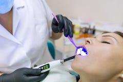 Conceito da medicina, da odontologia e dos cuidados médicos Opinião parcial do close-up o dentista que usa a lâmpada UV de cura d imagens de stock royalty free