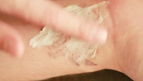 Conceito da remoção da tatuagem do laser cicatrizes após o procedimento de remoção Fim acima video estoque