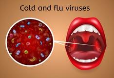 Conceito do vetor dos sintomas dos vírus do frio e da gripe ilustração do vetor