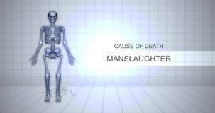 Conceito judicial humano da animação da autópsia - causa de morte - homicídio involuntário filme