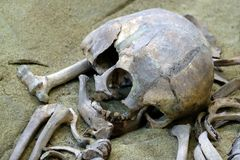 Concept archeology and scientific studies of death and exhumation. A close-up of the remains of a man, a destroyed skull and bones. A close-up of the remains of royalty free stock image