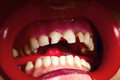 Free Concept: Bad Teeth Condition. Royalty Free Stock Photo - 13305795