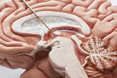 Concept of brain recording in subthalamic nucleus for Parkinson disease surgery. Close-up view of microelectrode recording on the brain model. Concept of brain stock images