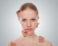 Concept of cosmetic effects, treatment, skin care Royalty Free Stock Image