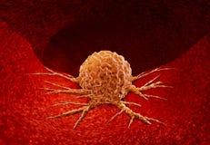 Concept d'anatomie de Cancer illustration de vecteur