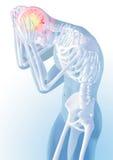 Concept de la douleur principale Transparent du squelette et du corps illustration 3d anatomique médicale Images libres de droits