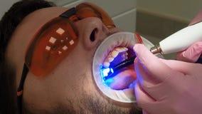 Concept de m?decine, d'art dentaire et de soins de sant? Vue partielle en gros plan du dentiste à l'aide de la lampe UV de traite banque de vidéos