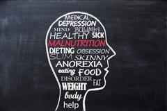 Concept de malnutrition avec des mots relatifs dans la forme de tête humaine images stock