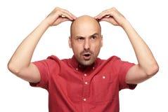 Concept de perte des cheveux d'homme photo stock