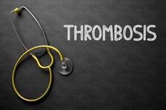 Concept de thrombose sur le tableau illustration 3D Image stock