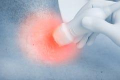 Concept du diagnostic d'ultrason de la maladie dans la lésion photos libres de droits