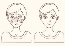 Concept for girl remove freckles outline. Cheerful cute young girl with freckles and same girl  without freckles. Concept for whiten skin and remove freckles Royalty Free Stock Photo