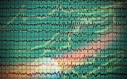 Concept graph brain wave EEG Royalty Free Stock Images
