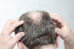 Concept of hair loss.Man doing a head massage as a treatment of receding. Closeup of men`s bald head. Man cheking his receding hairline Back of male bald head stock photography