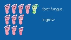 Concept médical de pédicurie de pied