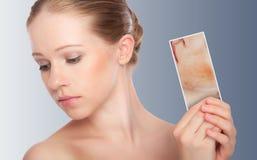 Concept skincare. Huid van schoonheidsvrouw stock foto