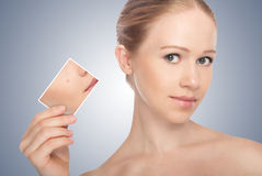Concept skincare . Skin of beautywoman. Concept skincare . Skin of beauty young woman before and after the procedure  on a gray background Royalty Free Stock Image