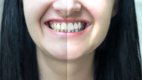 Concept of teeth whitening Royalty Free Stock Image