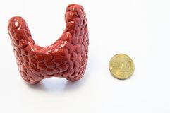 Concept of visualization of enlarged thyroid gland in various diseases, such as goiter, thyroiditis, nodule. Anatomical model of t. Hyroid gland is located near stock image
