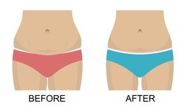 Before after concept, weight loss. Waist and belly Stock Photography