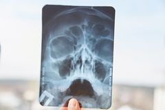 Concept. Young man holding x-ray in his hand against the sky royalty free stock photography