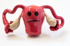 Conceptenfoto van ongelukkige, droevige baarmoeder en eierstokken met ziekte of wanorde Cijfer van baarmoeder met droevige glimla royalty-vrije stock afbeelding