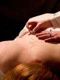 Concepto de la acupuntura Imagen de archivo libre de regalías
