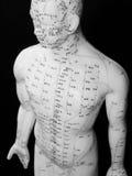 Concepto de la acupuntura Imágenes de archivo libres de regalías