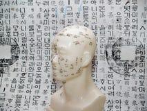 Concepto de la acupuntura Foto de archivo