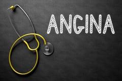Concepto de la angina en la pizarra ilustración 3D fotos de archivo libres de regalías