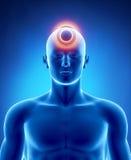 Concepto de la jaqueca y del dolor de cabeza Fotografía de archivo libre de regalías