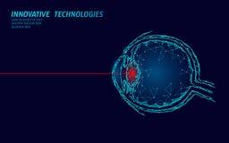 Concepto de la operación de la medicina de la corrección de la visión del laser Atención sanitaria de la tecnología de la innovac libre illustration