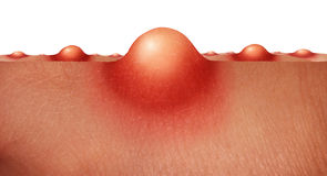 Concepto de la piel del acné Fotos de archivo