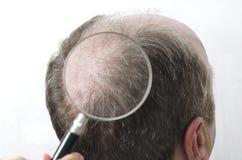 Concepto de trasplante del pelo Primer de la lupa, la parte posterior de cabeza del hombre de exploración donde no hay pelo foto de archivo libre de regalías