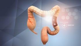Concepto del cáncer de colon libre illustration