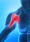 Concepto del dolor del brazo Fotografía de archivo libre de regalías