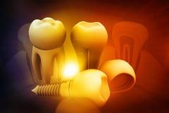 Concepto del implante dental Fotos de archivo libres de regalías